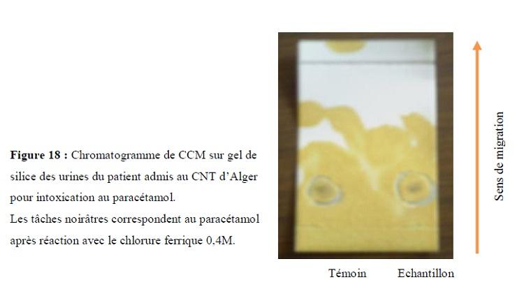 Figure 17 Chromatogramme de CCM sur gel de silice des urines du patient admis au CNT d'Alger pour intoxication au paracétamol