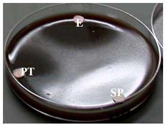 Figure 15 Helicobacter pylori  Etude bactériologique des premières souches isolées à l'Hôpital Bologhine Ibn Ziri