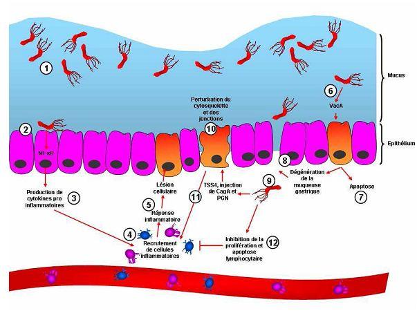 Figure 7 Helicobacter pylori  Etude bactériologique des premières souches isolées à l'Hôpital Bologhine Ibn Ziri