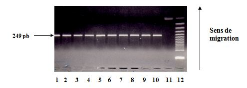 Polymorphisme à la position +3954 du gène de l'IL1Vérification de l'amplification sur gel d'agarose à 2