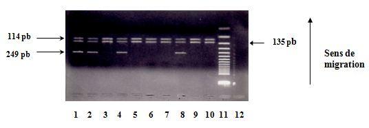 Polymorphisme à la position +3954 du gène de l'IL1. Révélation des produits de digestion sur gel d'agarose à 4