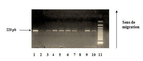 Polymorphisme à la position (-889)  du gène de l'IL1-α Vérification de l'amplification sur gel d'agarose à 2
