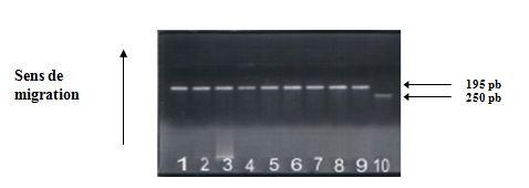 Polymorphisme A G en position (+49) de l'exon 1 du gène du CTLA-4