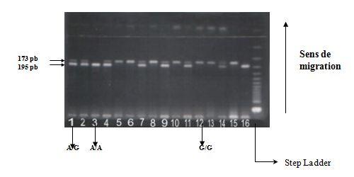 Polymorphisme A G en position (+49) de l'exon 1 du gène du CTLA-4'