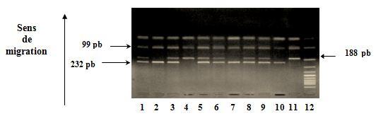 Polymorphisme du gène de l'Apo 1 Fas Révélation des produits de digestion sur gel d'agarose à 4