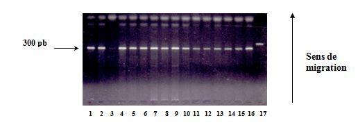Polymorphisme du gène de l'Apo 1 Fas Vérification de l'amplification sur gel d'agarose à 2