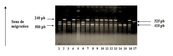 Polymorphisme du gène du récepteur antagoniste de l'IL1 (IL1-Ra)