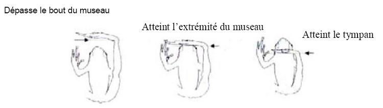 L'articulation tibio-tarsale